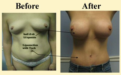Mommy-Makeover-with-Breast-Lift-2