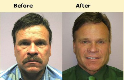 Male Facelift